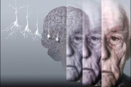 Giornata nazionale Alzheimer, in Abruzzo 15mila casi